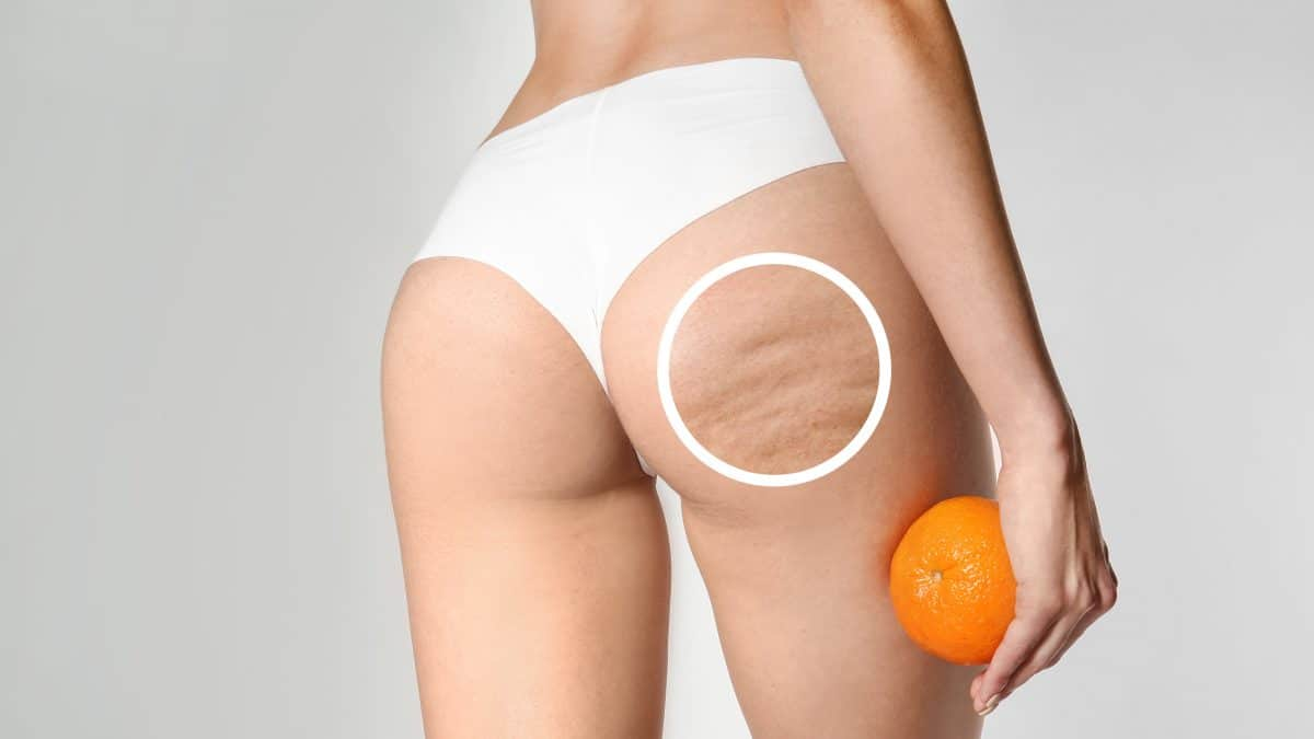 Young woman with orange on light background. Problem of cellulite
