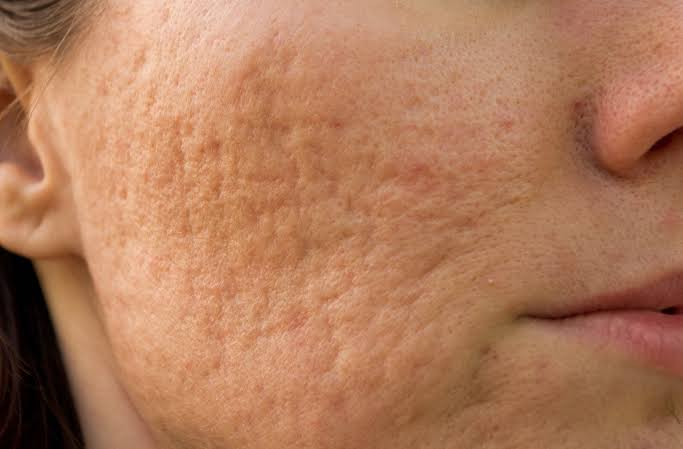 acne-scarring-on-face